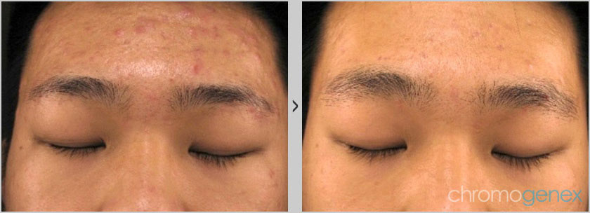 Before After Acne