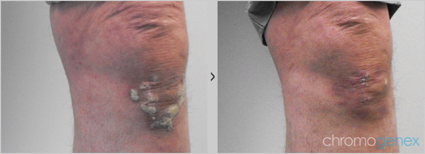 Psoriasis before after photo