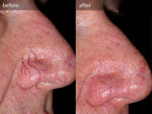 Vascular lesions vancouver
