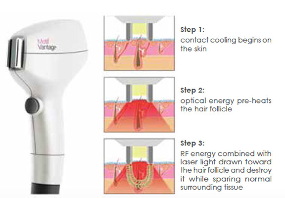 Laser Hair Removal Vancouver