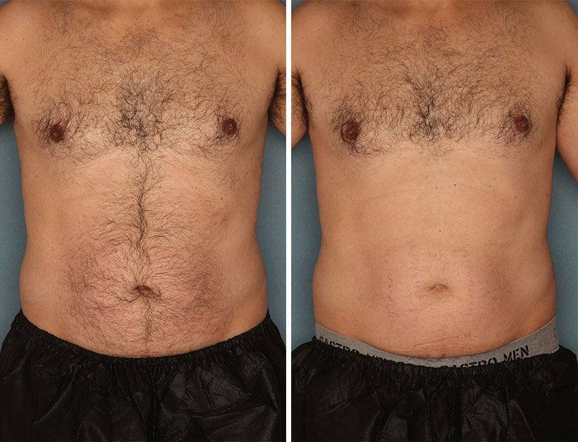 men laser before after