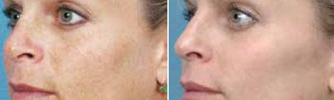 Pigmented Lesion Treatment Vancouver