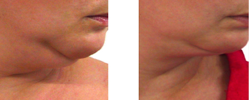 before and after double chin reduction treatment