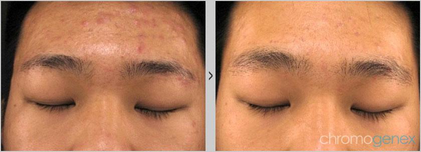 active Acne Scar Treatment vancouver