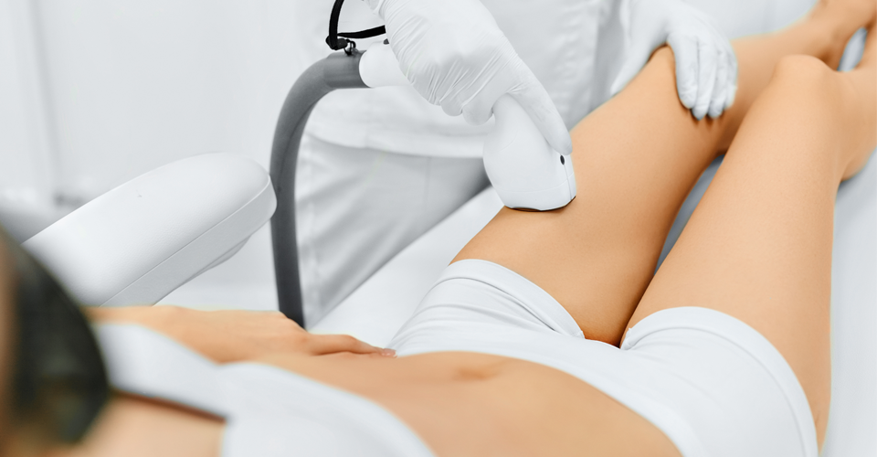 Laser hair removal in vancouver