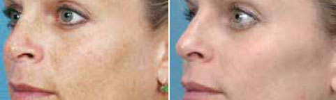 Pigmented Lesion Treatment Vancouver