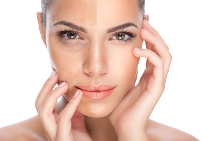 Skin Rejuvenation in Vancouver , skin pigmentation treatment image