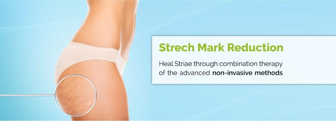 Strech Mark