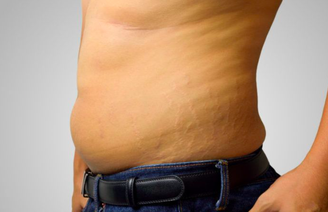 Male Stretch Marks - Paad Wellness