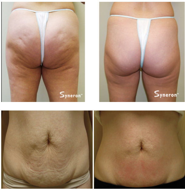 Patient Results of Body Sculpting