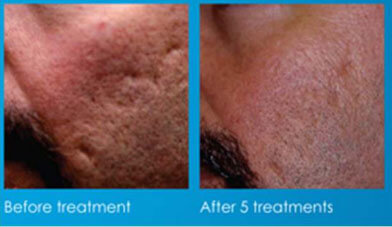 before-acne-treatment-after-5-treatments
