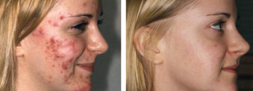 before-after-acne-scar-treatment-vancouver