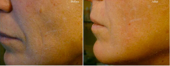 before-after-facial-treatment-vancouver