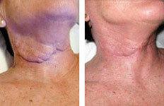 scar-treatment-vancouver