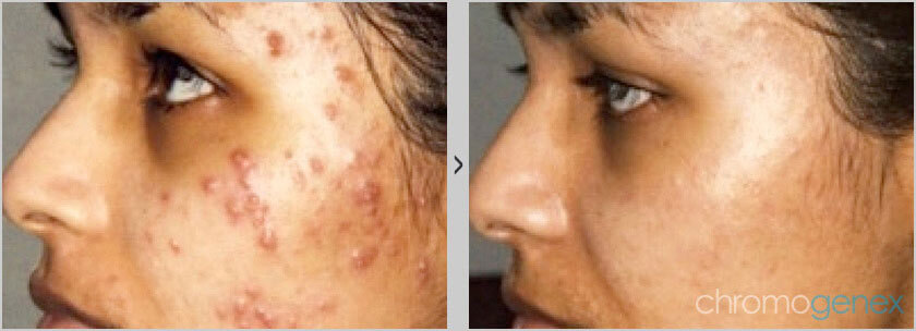 before-and-after-acne-scar-treatment-vancouver
