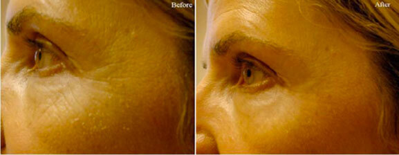 before-and-after-facial-treatment-vancouver