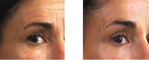 before-and-after-non-surcial-face-lift-vancouver
